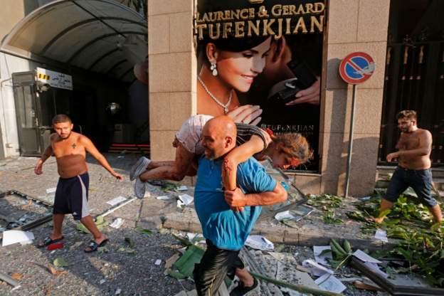 Dëshmitë nga Bejruti/ Ballkonet shpërthyen nëpër pallate